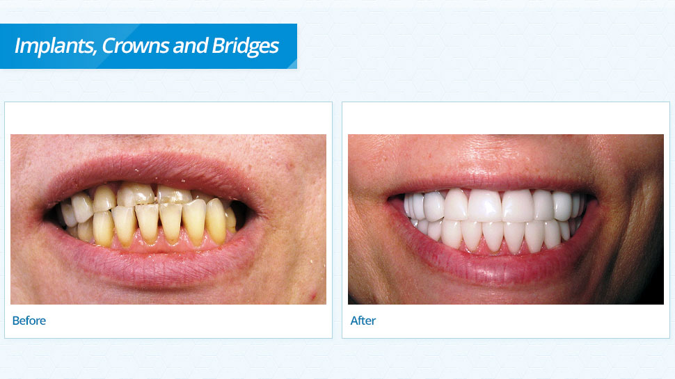 Implants Crowns And Bridges Excel Dentistry Mn