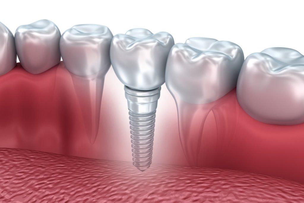 St Louis Park dental implants